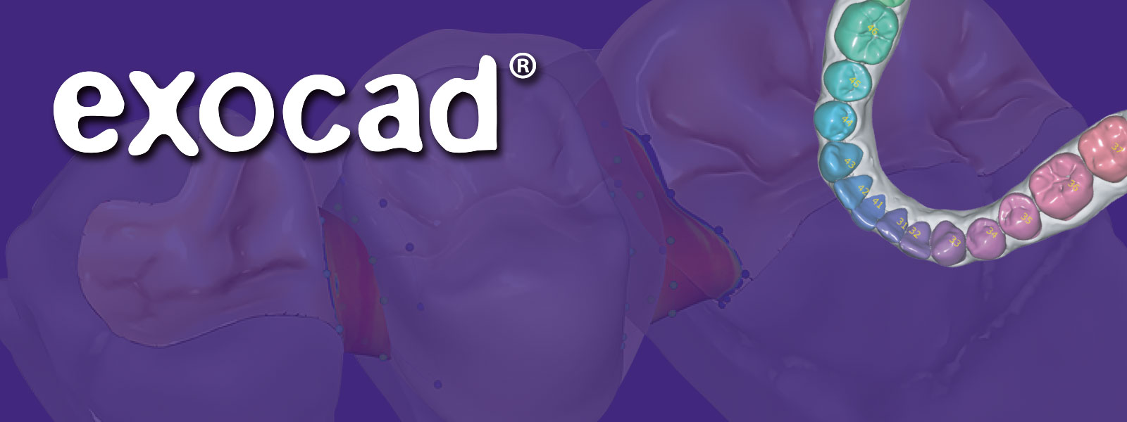 exocad software